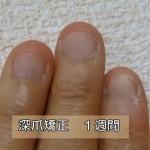 深爪爪噛み克服1週間