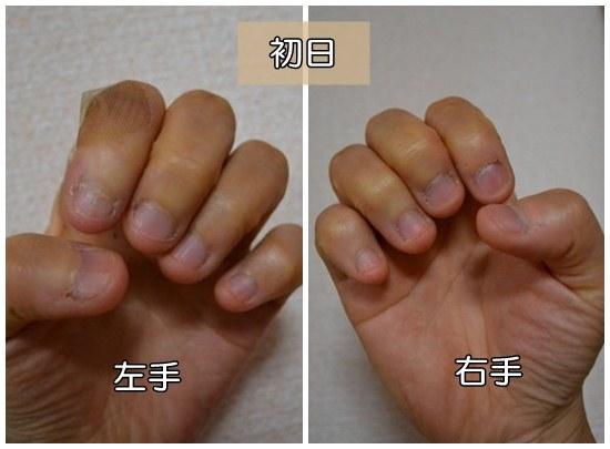 深爪克服治療1日目