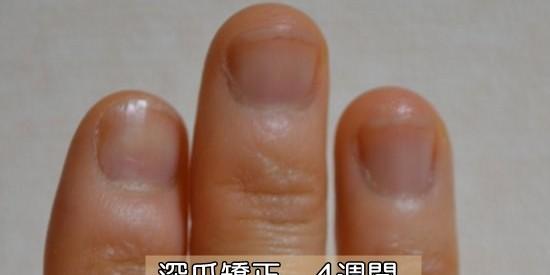 深爪・爪噛み克服4週間目