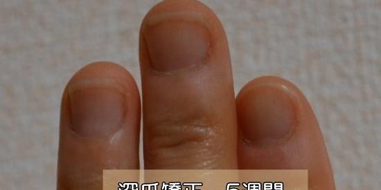 深爪爪噛み克服5週間