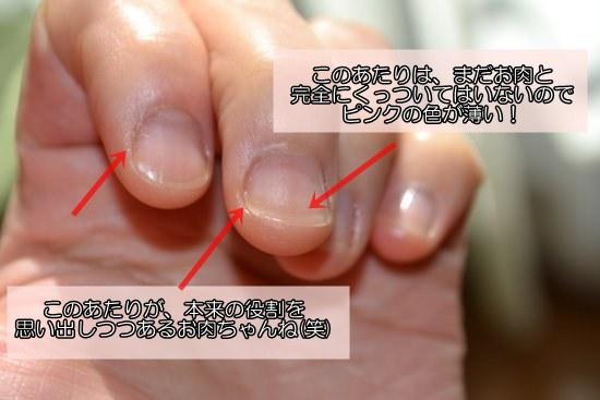 5週間目の深爪の様子