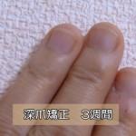 深爪・爪噛み3週間目