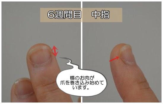 6週間目の中指(深爪)