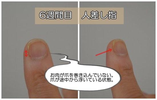 6週間人差し指(深爪)