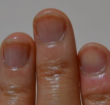 爪噛み克服10週間