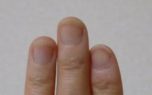 爪噛み克服9週間