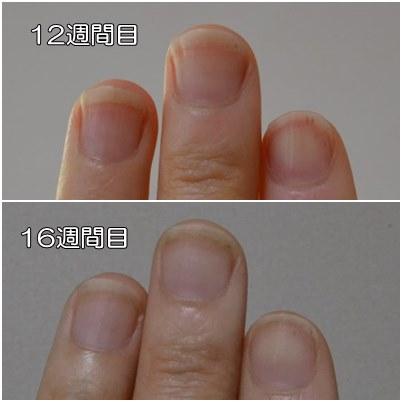 12週間目と16週間目の爪を比較
