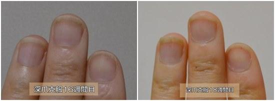 18週間目と15週間目の爪の比較