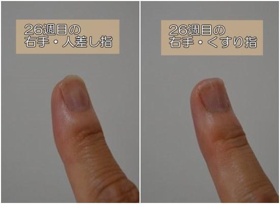 26週目の人差し指と薬指