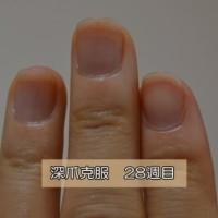 深爪を自分で治し方28weeks