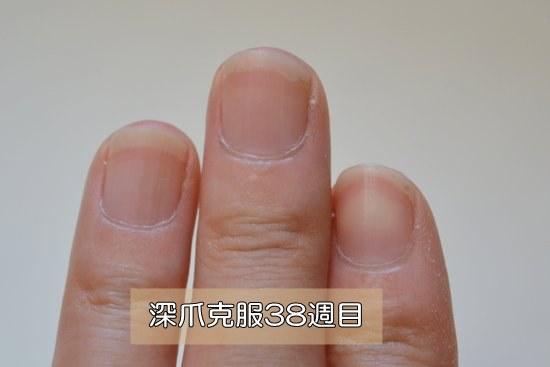 深爪治療38週目