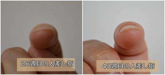 爪が扁平な悩み