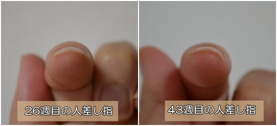 爪が扁平・まっすぐの悩み