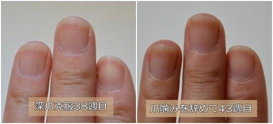 5週間前と深爪の比較