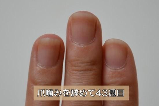 爪噛みを治し始めて43週目