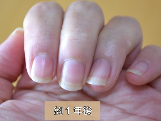 爪噛み女子 治して1年