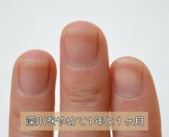 深爪を辞めて1年と1ヶ月