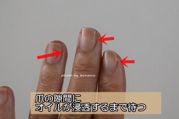 深爪用のネイルケアの方法 治し方