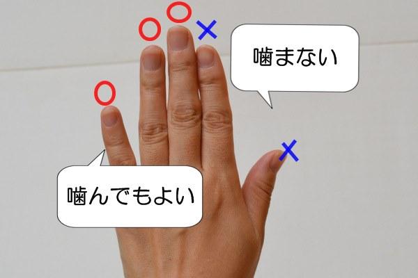 爪噛み癖の辞め方 噛んでもよい指を作る