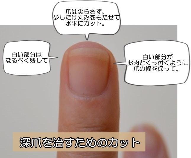 深爪を治すための爪カット・爪切り