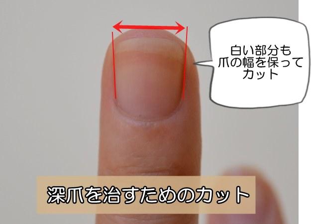 深爪さんのための爪の切り方
