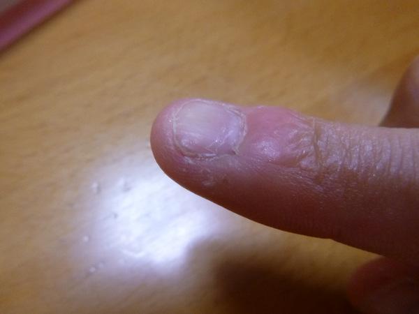 深爪 ささくれ 手荒れ 治し方 治療