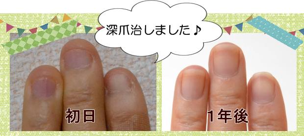 深爪の治し方・治療克服、爪噛み癖