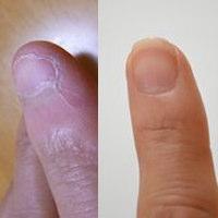 深爪って治るの?