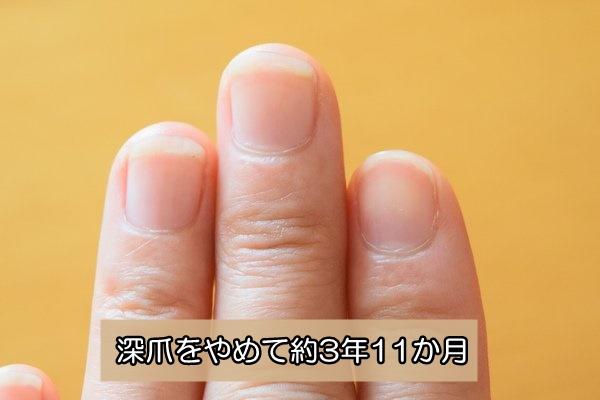 深爪をやめる 爪噛みをやめる 約4年後