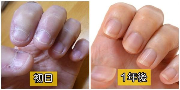 深爪治療 自力で ブログ