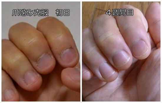 爪噛み克服初日と4週間目
