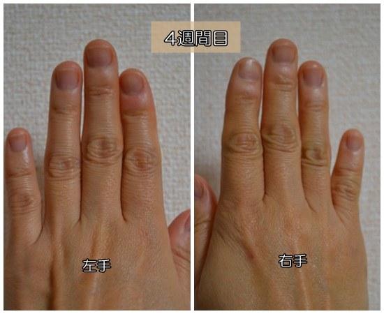 爪噛み克服4週間