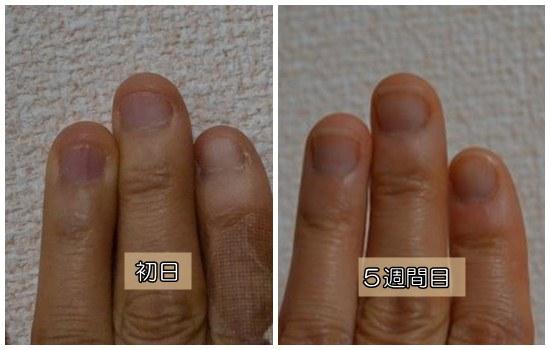 深爪5週間目2