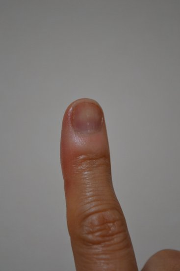 小さい爪・人差し指