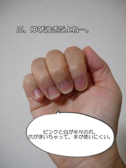 爪噛み克服9週間、爪が浮く