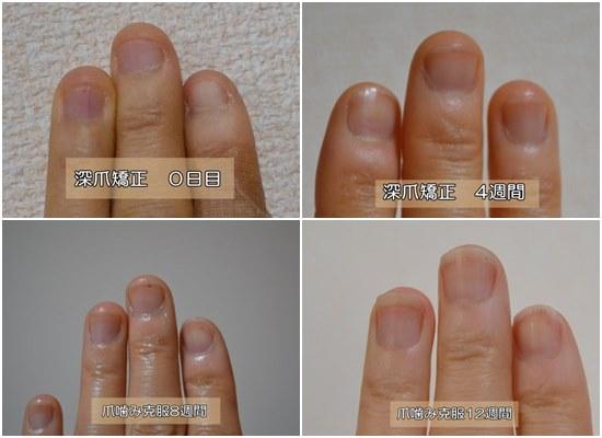 爪噛みをやめて3ヶ月