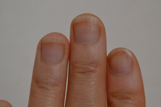 爪噛み克服11週間目