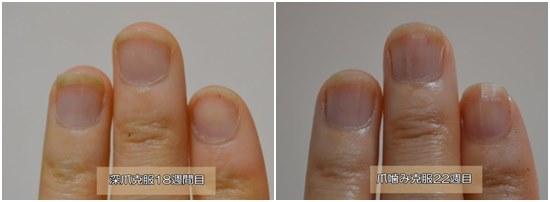 18週と22週の爪の様子を比較