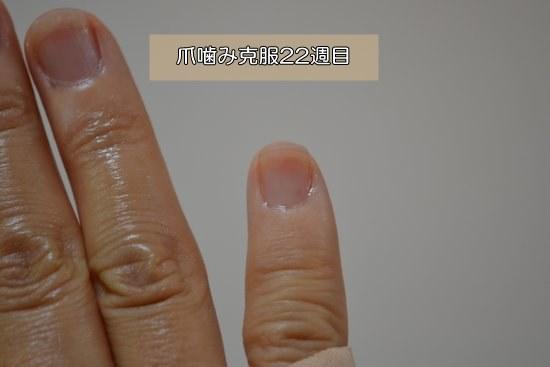 深爪を自分で治す