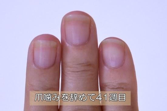 深爪を治して41週目