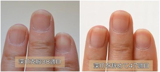 深爪の治療後38週と47週比較