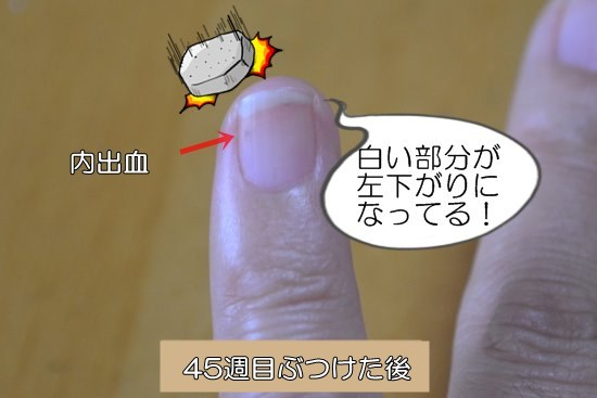 45週目左小指