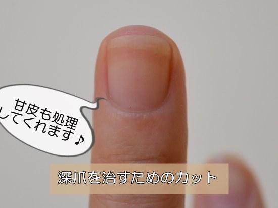 深爪を治すための爪の切り方