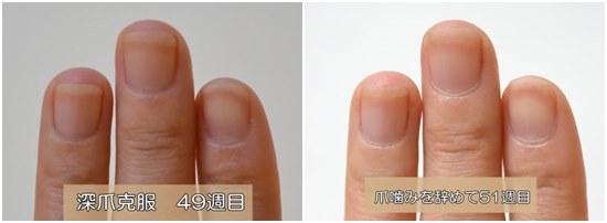 49週目と51週目の爪比較