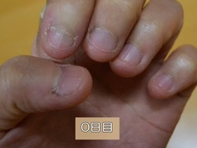 爪噛み深爪治療開始