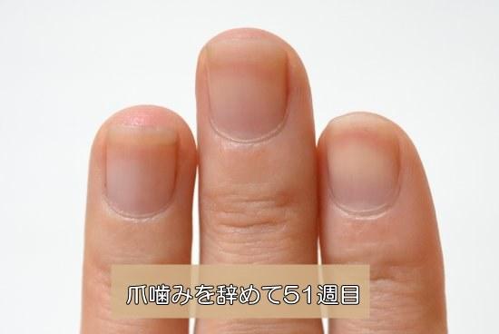爪噛み治療51週目