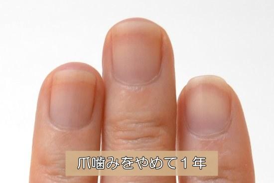 深爪を辞めて1年
