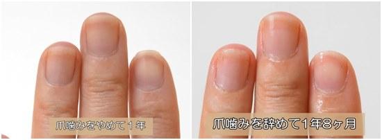 爪噛みを辞めて1年VS1年8ヶ月比較