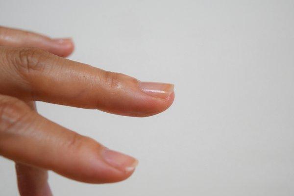 爪噛みを辞めて1年8ヶ月