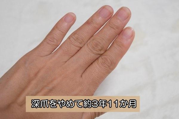 深爪を辞めて約4年 爪噛み辞める